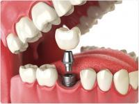 Les implants dentaires : un acte médical exonéré de Taxe sur la Valeur Ajoutée (TVA)
